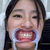 【歯フェチ】春菜はなさんの歯を観察しました!