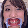 【Tooth fetish】 I saw Teisha 's teeth!