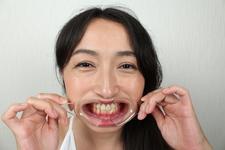 ♦ ️ [Dental fetish # 8] ♦ ️ New intraoral observation ⭐️ SHIINA⭐️ by Oral hermit (Dr. X)‼ ️